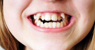 ناهنجاری دندان و درمان ها