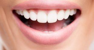 روش های دندانپزشک زیبایی - زیبایی دندان